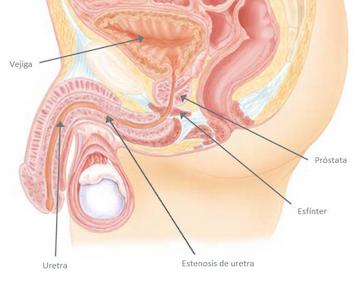 Estenosis de uretra