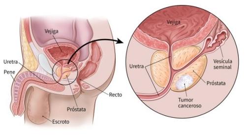 Cuidados tras una prostatectomía radical