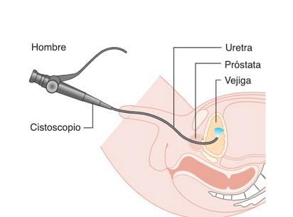 Cistoscopia, qué es y cuándo es necesaria