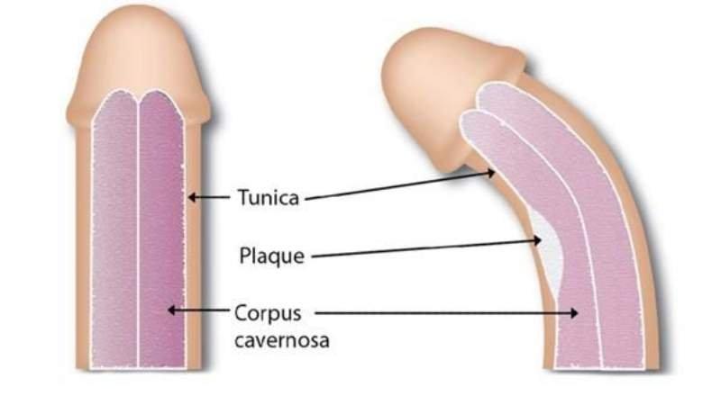 Mayo Clinic. Enfermedad de la Peyronie.
